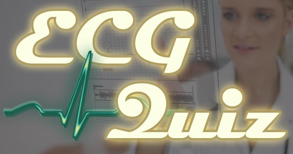 ECG Quiz - Online electrocardiogram interpretation tests
